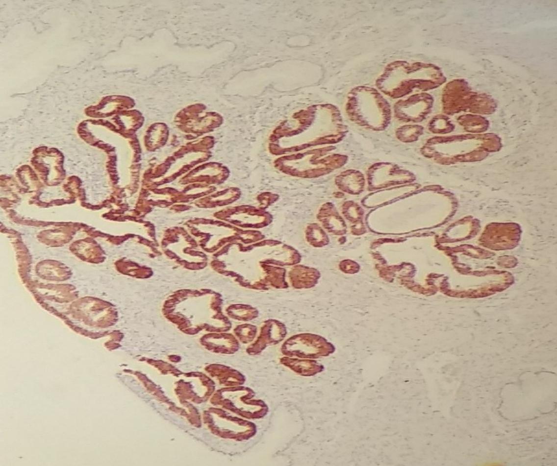 inmunohistoquimica hiq